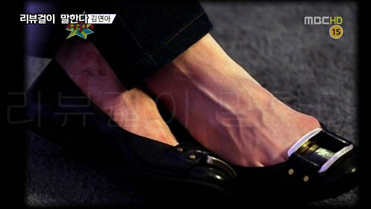 상처투성이 김연아 발