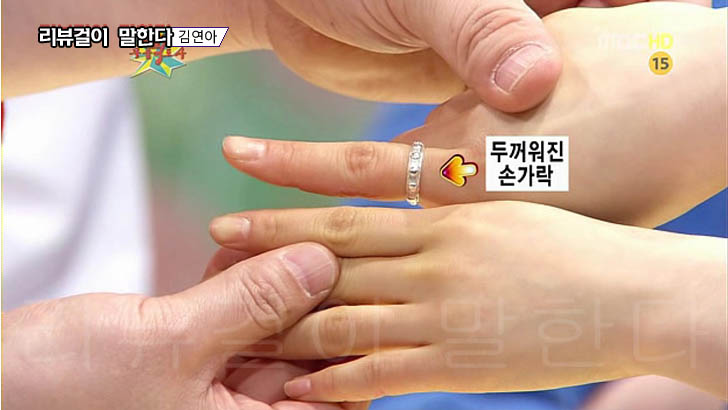 김연아 두꺼워진 손가락