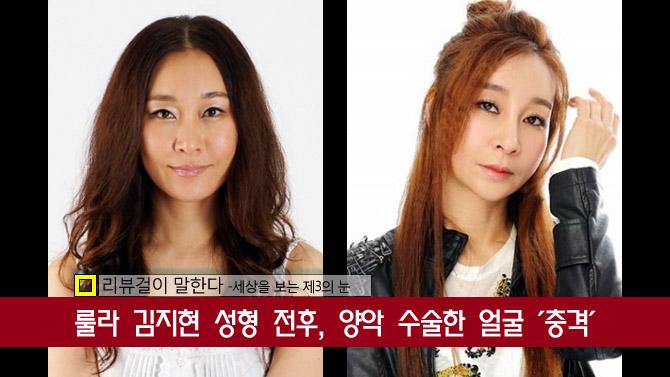 룰라 김지현 성형 전후