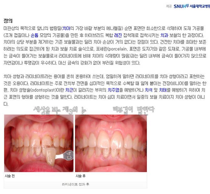 라미네이트 치아 교정 전과 후